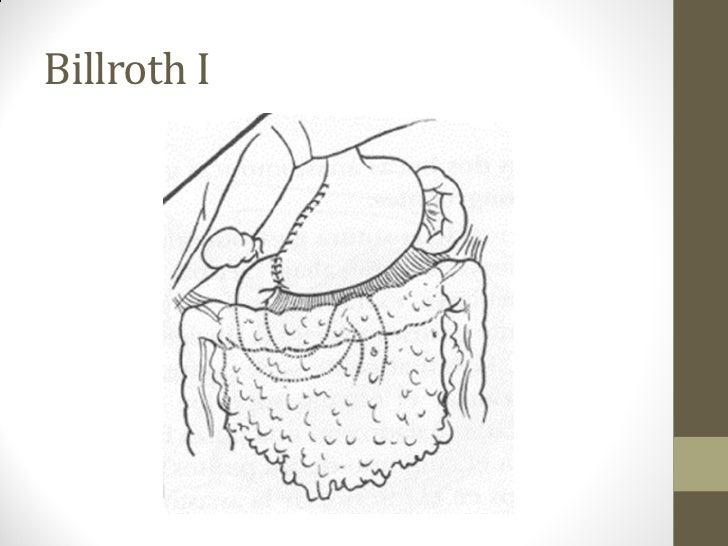 Gastrectomia (tècnica quirúrgica)