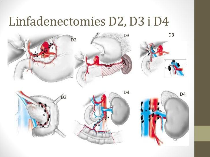 PRIMERA PART. ENTRADA A CAVITAT ABDOMINALIncisió: laparotomia ½ vs subcostal bilateral