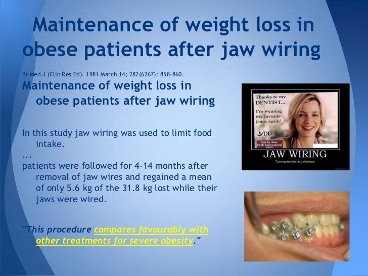 gastric pouch and gastric bypass rh slideshare net jaw wiring for weight loss pictures jaw wiring weight loss results