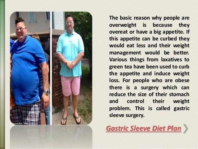 Gastric sleeve diet plan