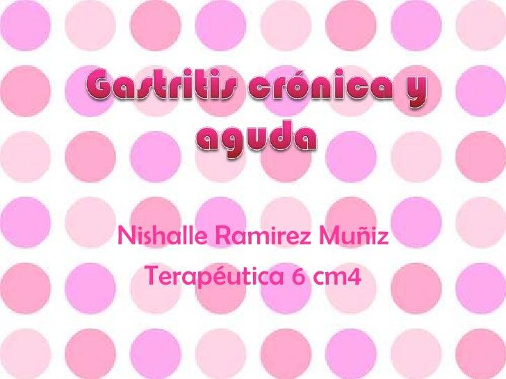 NishalleRamirez Muñiz<br />Terapéutica 6 cm4<br />Gastritis crónica y aguda<br />