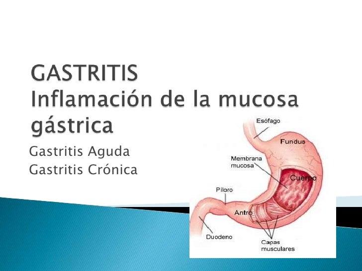 GASTRITIS Inflamación de la mucosa gástrica<br />Gastritis Aguda <br />Gastritis Crónica<br />