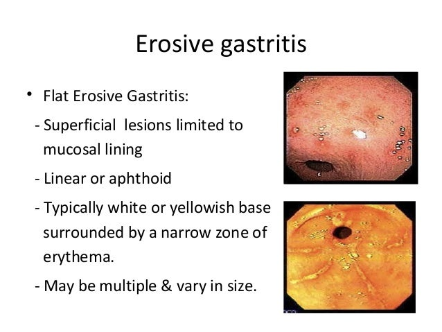 antral gastritis and chronic atrophic.jpg