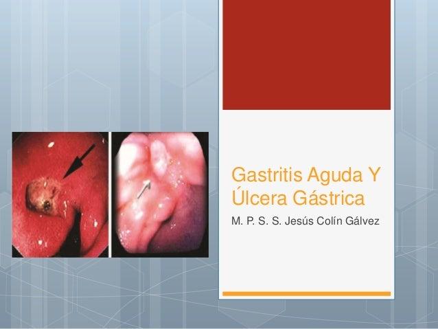 sintomas de gastritis y ulcera gastrica