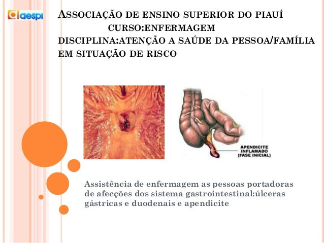 ASSOCIAÇÃO DE ENSINO SUPERIOR DO PIAUÍ CURSO:ENFERMAGEM DISCIPLINA:ATENÇÃO A SAÚDE DA PESSOA/FAMÍLIA EM SITUAÇÃO DE RISCO ...