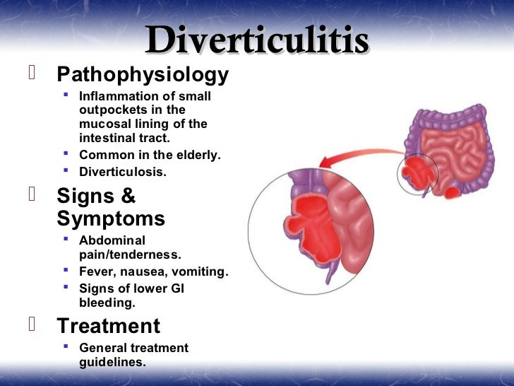 how to cure diverticulitis naturally