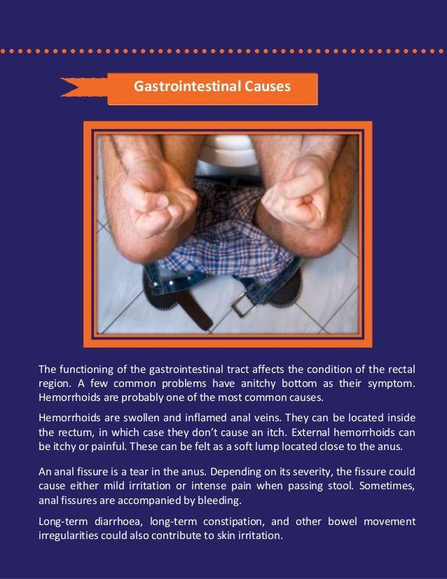 Causes of irritated anus mot hemorrhoids