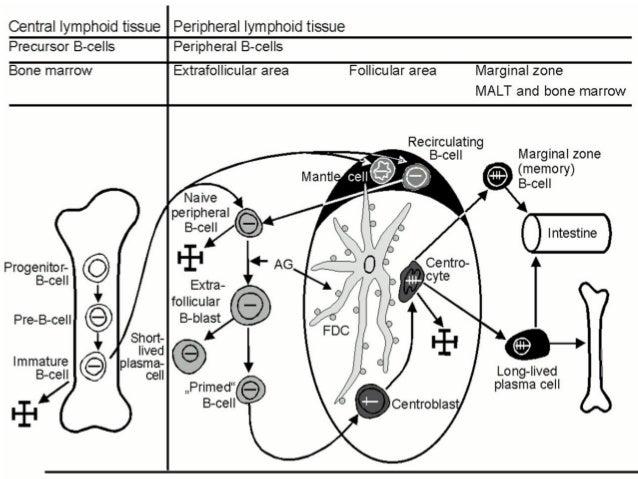 GI NHL-Histological types  Diffuse B cell large cell  Secondary DLBCL  Extra nodal marginal zone lymphoma (MALT)  Foll...