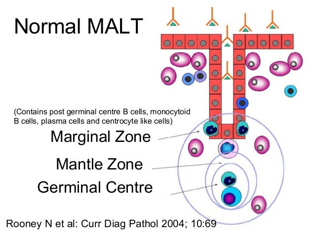 H pylori and Malt lymphoma  ~90% have H pylori in gastric mucosa~90% have H pylori in gastric mucosa  Case control studi...
