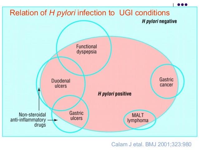 Gastric MALT lymphoma  MALT reacts with the antigen present within the lumen  An Pr Cells +H pyhlori antigen+CD4+ T cell...