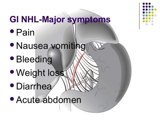 GI NHL-Major symptoms Pain Nausea vomiting Bleeding Weight loss Diarrhea Acute abdomen