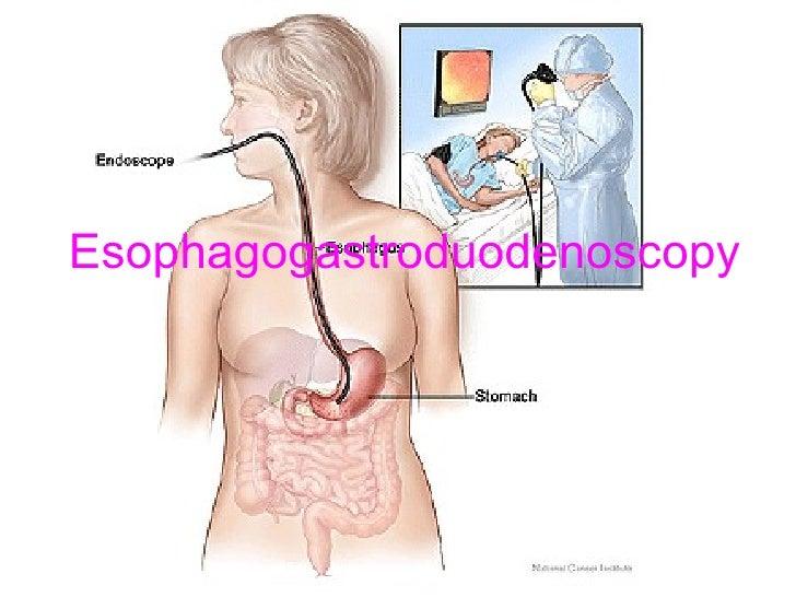 Esophagogastroduodenoscopy