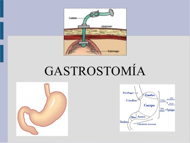 Gastrostom a definici n indicaciones tipos cuidados y for Que es tecnica de oficina wikipedia