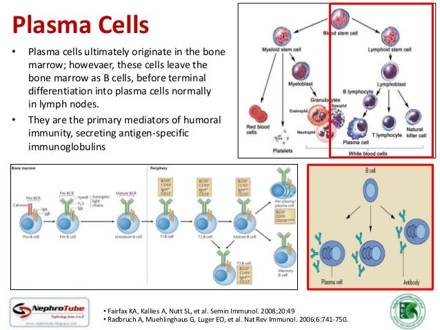 Plasma Cell Dyscrasias The Kidney How They Affect The Kidney When To Suspect How To Diagnose