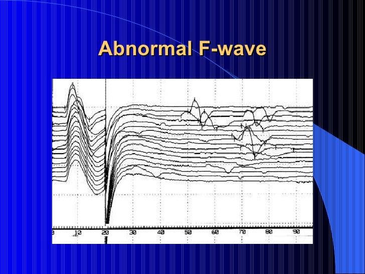 Nerve conduction study equipment