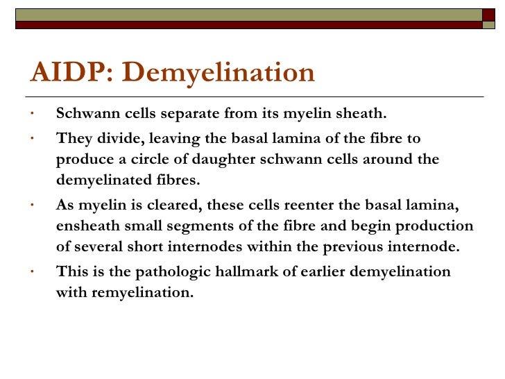 AIDP: Demyelination <ul><li>Schwann cells separate from its myelin sheath. </li></ul><ul><li>They divide, leaving the basa...