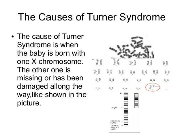 Gb turner syndrome