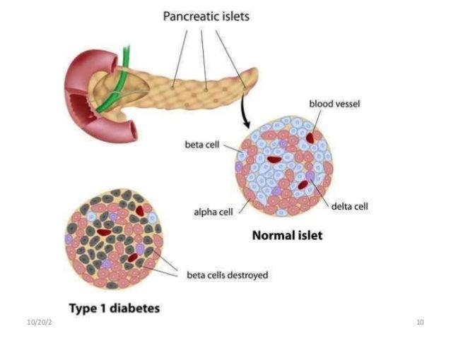 Gestational Diabetes Mellitus and Nursing Management