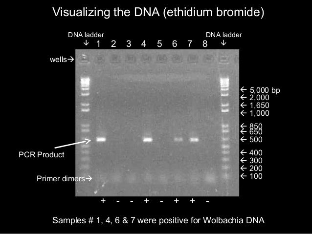 dna elektroforese essay E coli genomic dna is purified from e coli type b cells, atcc 11303 strain it has a single chromosome and the genome is 4,600,000 bp long it has a single chromosome and the genome is 4,600,000 bp long.