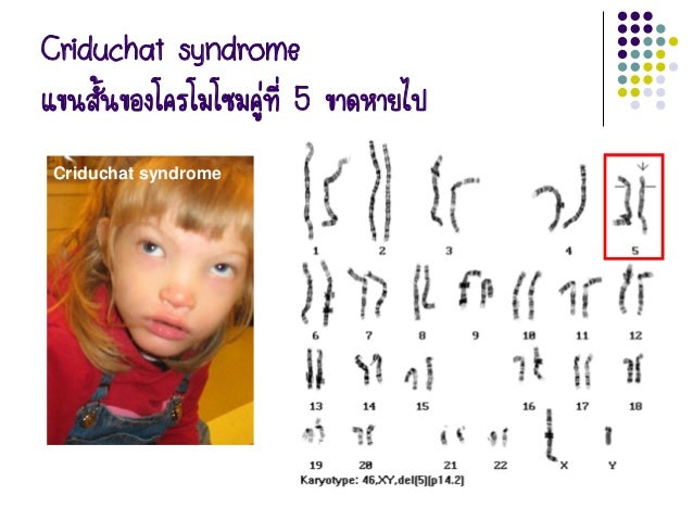 Xxxxy Syndrome Gene and chromosome up...