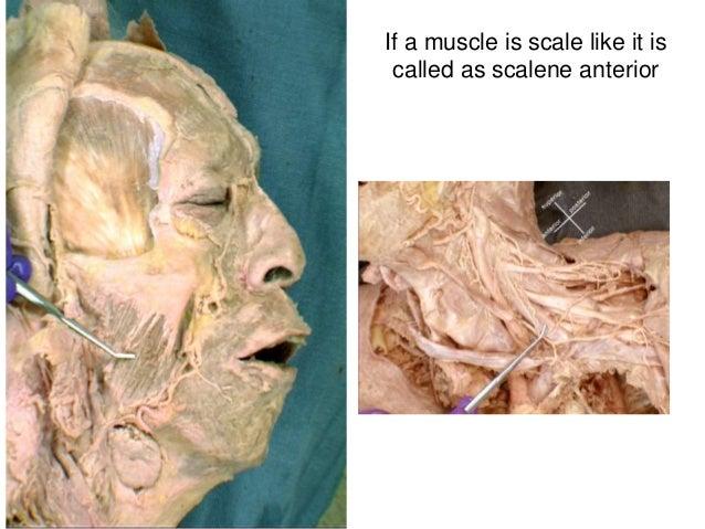 lateral pterygoid cadaver - photo #15