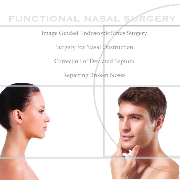 FUNCTIONAL NASAL SURGERY    Image Guided Endoscopic Sinus Surgery        Surgery for Nasal Obstruction        Correction o...