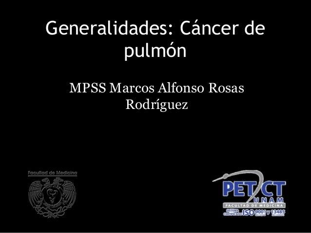 Generalidades: Cáncer de pulmón MPSS Marcos Alfonso Rosas Rodríguez