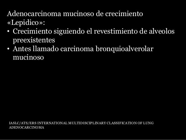 Histología: • Células escamosas • Perlas queratinicas • Puentes intercelulares Harvey I. Lung Cancer: Principles & Practic...