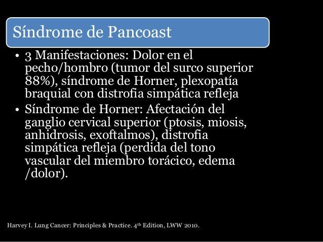 Vías de diseminación Extensión local Extensión local desde el tumor hasta los tejidos circundantes No se ve con frecuencia...