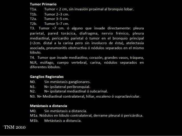 • Cirugía toracoscópica asistida por vídeo (CTAV) - Mínimamente invasiva - Se utiliza para cirugía diagnóstica y terapéuti...