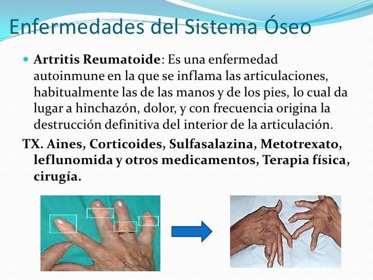 Famoso Anatomía Y La Fisiología De La Artritis Reumatoide ...