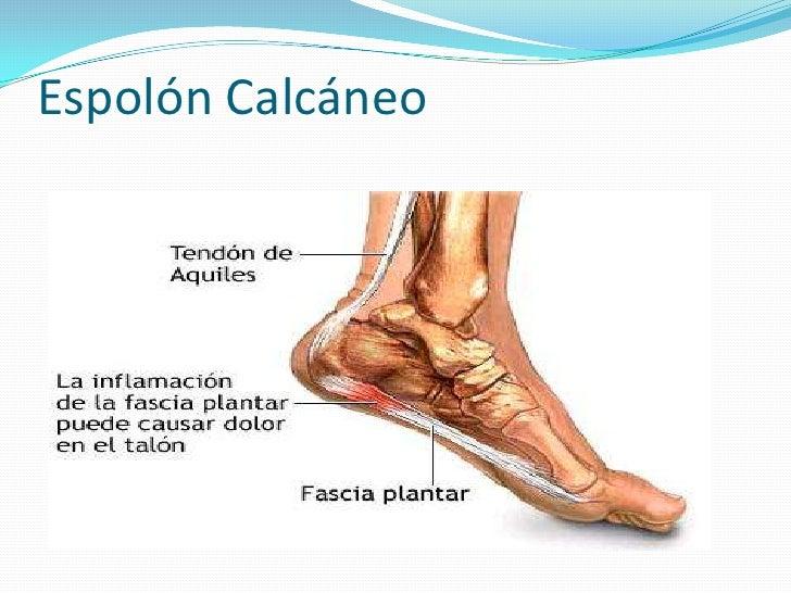 Moderno Talón Anatomía Fotos Regalo - Anatomía de Las Imágenesdel ...
