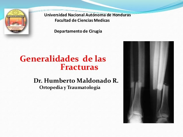 Universidad Nacional Autónoma de Honduras Facultad de Ciencias Medicas Departamento de Cirugía Generalidades de las Fractu...