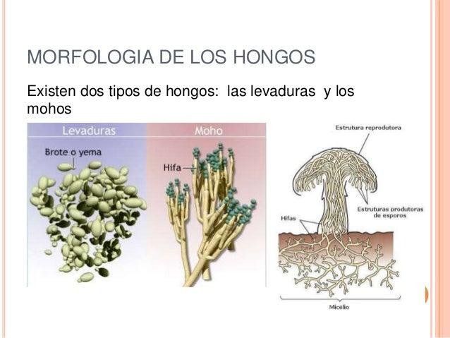 Generalidades de los hongos - Tipos de hongos en la pared ...