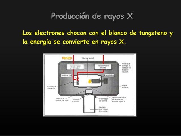 Los electrones chocan con el blanco de tungsteno y la energía se convierte en rayos X. Producción de rayos X