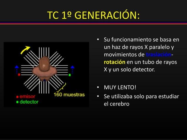 TC 1º GENERACIÓN: • Su funcionamiento se basa en un haz de rayos X paralelo y movimientos de traslación- rotación en un tu...