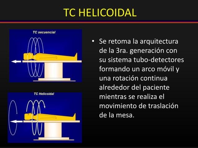 TC HELICOIDAL • Se retoma la arquitectura de la 3ra. generación con su sistema tubo-detectores formando un arco móvil y un...