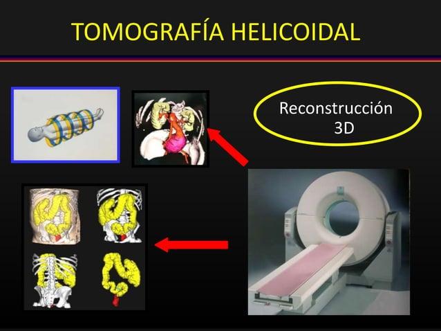 TOMOGRAFÍA HELICOIDAL Reconstrucción 3D