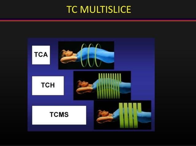 TC MULTISLICE
