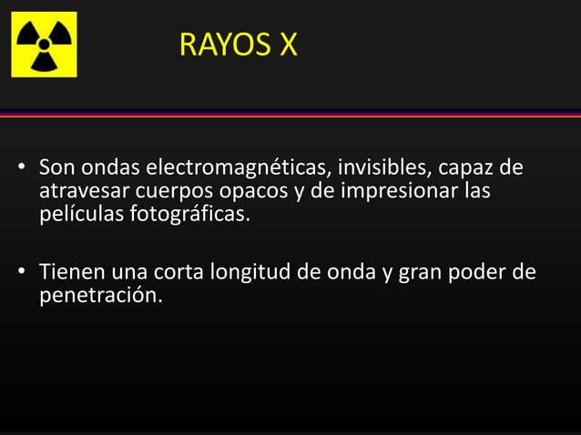 RAYOS X • Son ondas electromagnéticas, invisibles, capaz de atravesar cuerpos opacos y de impresionar las películas fotogr...