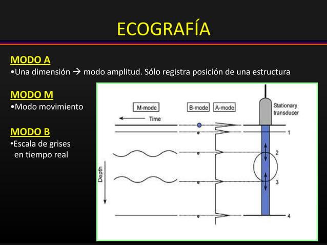 MODO A •Una dimensión  modo amplitud. Sólo registra posición de una estructura MODO M •Modo movimiento MODO B •Escala de ...