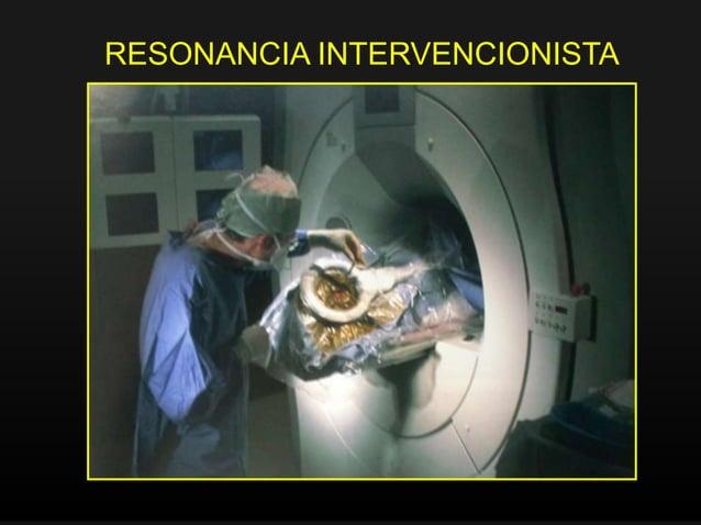 Medicina Nuclear • Mide la radiactividad emitida por isótopos que se administran al paciente • Capacidad de mostrar la fun...