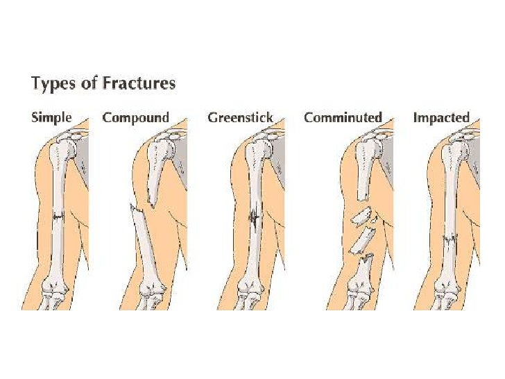 general principles of fractures, Human Body