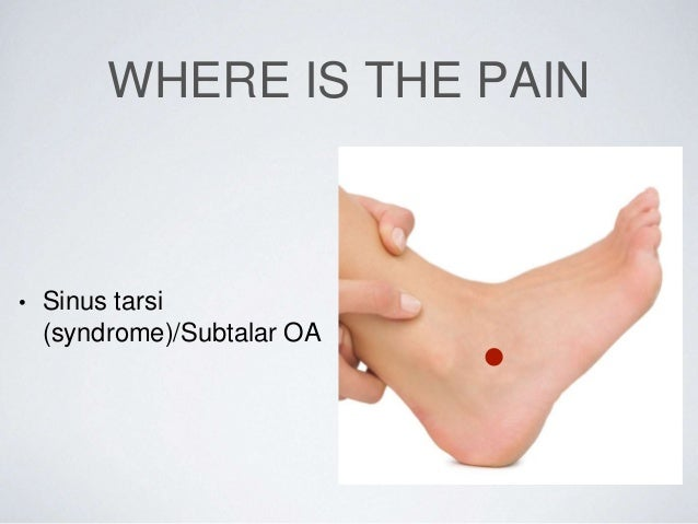 steroid injection foot plantar fasciitis