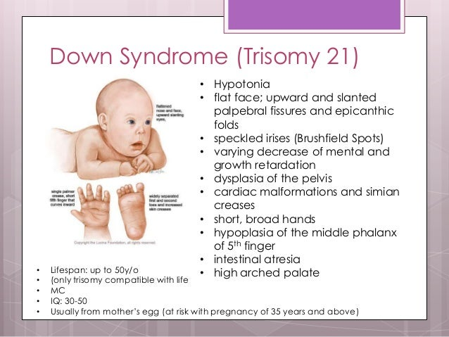 the characteristics of down syndrome a genetic disorder Down syndrome (trisomy 21) - etiology, pathophysiology, symptoms, signs,   chromosome and gene anomalies overview of chromosomal anomalies  down.