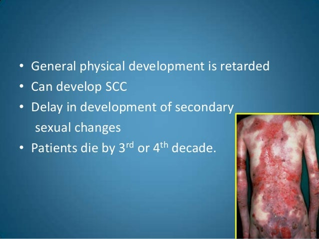 Genetic Epidermolysis Bullosa