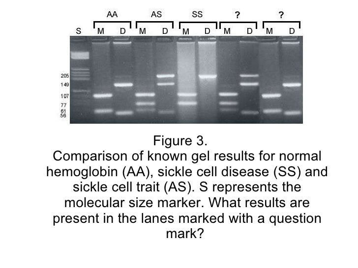 sickle cell gel electrophoresis