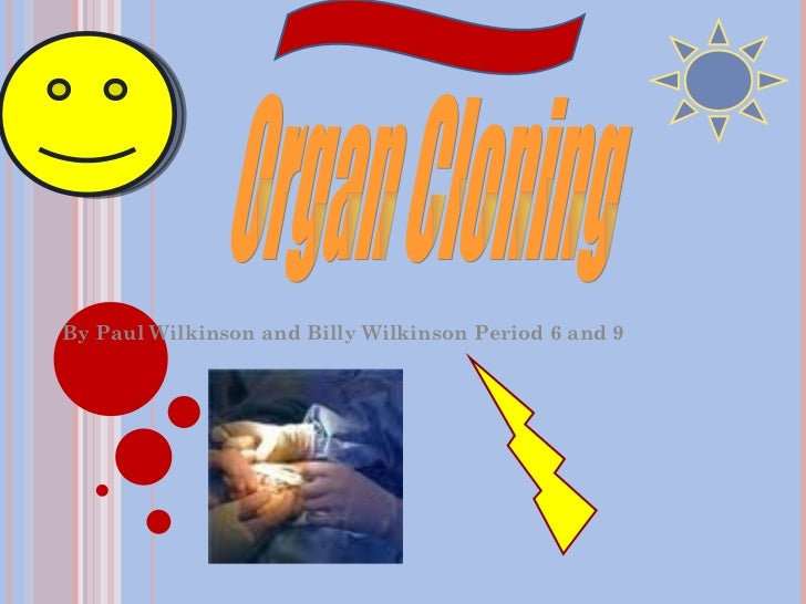By Paul Wilkinson and Billy Wilkinson Period 6 and 9 Organ Cloning