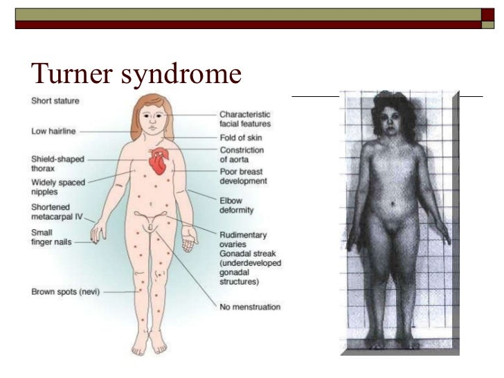 turners-syndrome-porn-tube