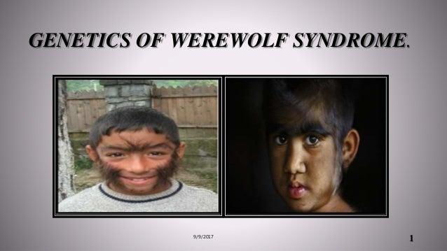 GENETICS OF WEREWOLF SYNDROME. 19/9/2017